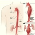 aorta-1-get-the-facts